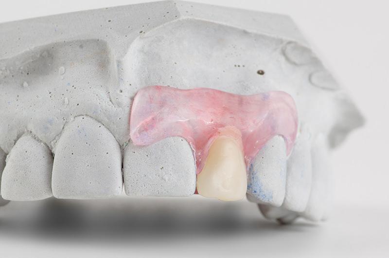 こんな入れ歯のお悩みはございませんか?