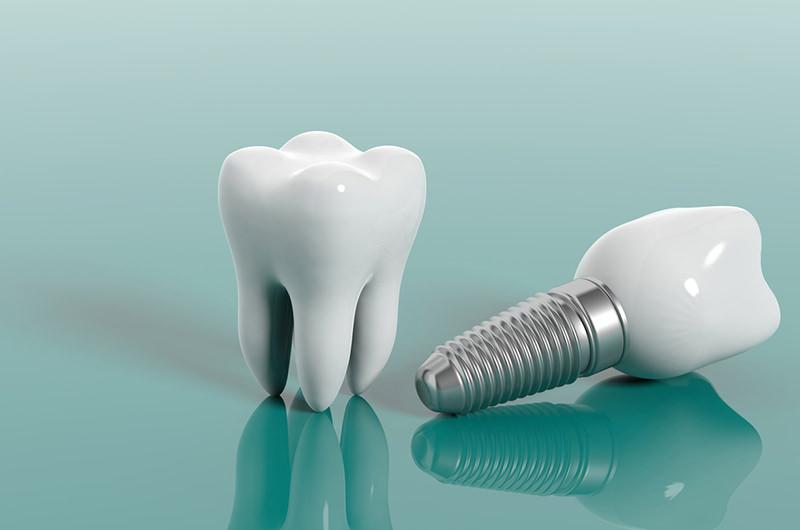 自費の入れ歯・インプラントもご提供しています