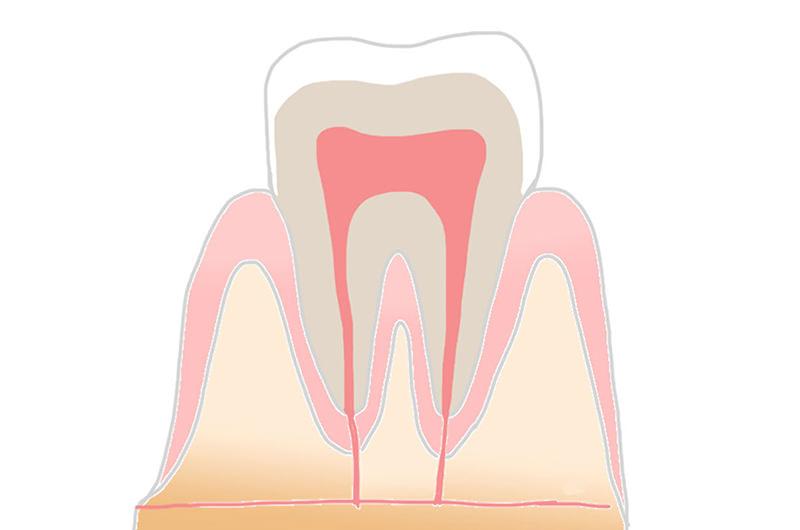CO(シーオー):初期の虫歯