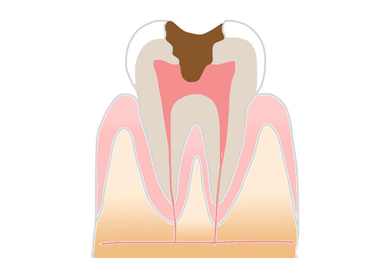 C3:神経にまで達した虫歯