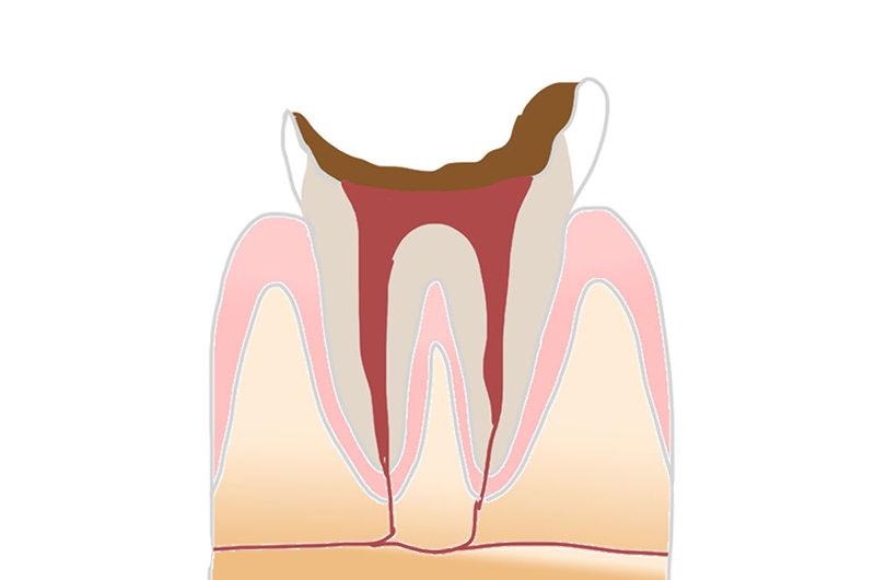 C4:歯根にまで達した虫歯