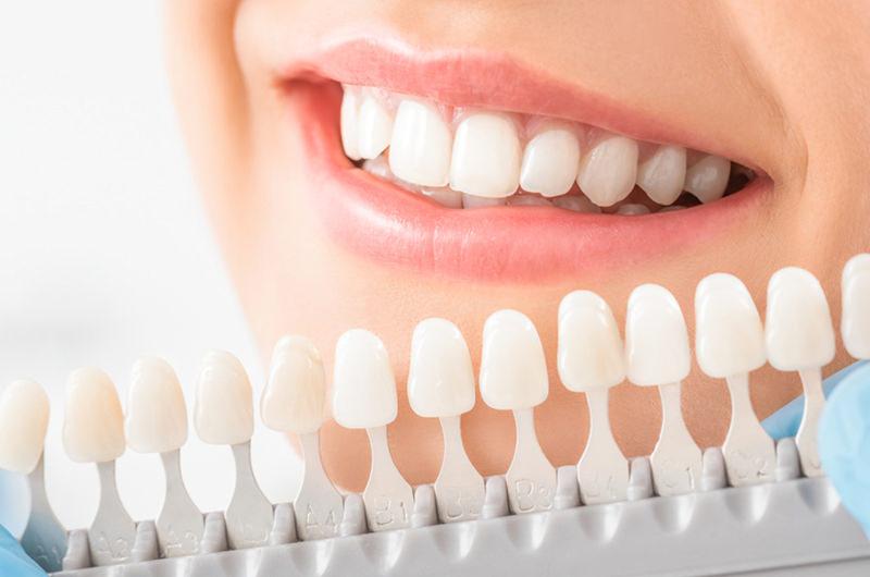 ホワイトニングで歯を白く輝かせます