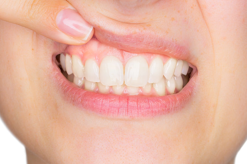 健康的なピンク色の歯茎を取り戻します